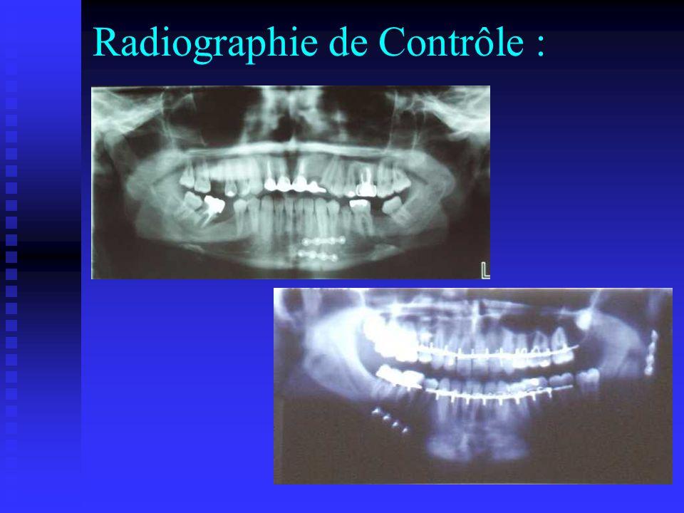 Radiographie de Contrôle :