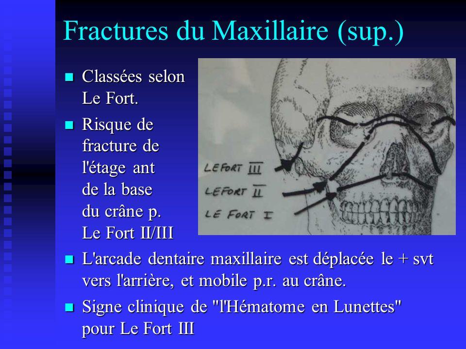 Fractures du Maxillaire (sup.)