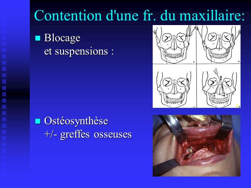 Contention d une fr. du maxillaire: