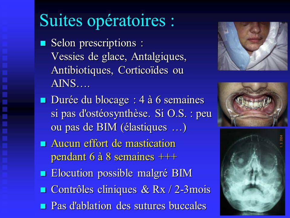 Suites opératoires : Selon prescriptions : Vessies de glace, Antalgiques, Antibiotiques, Corticoïdes ou AINS….