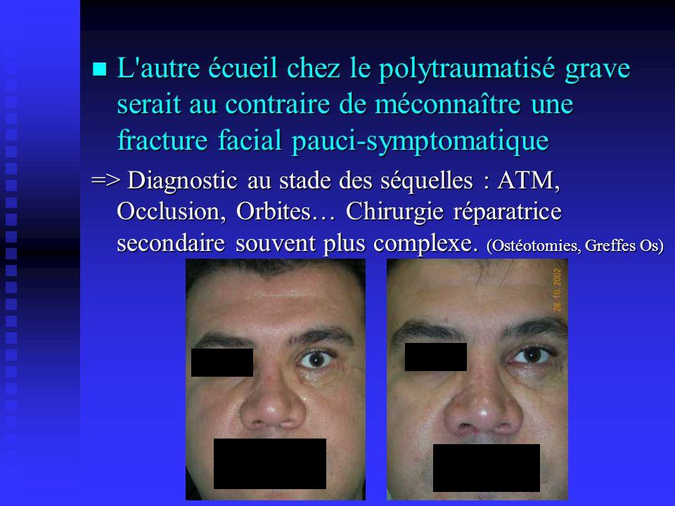 L autre écueil chez le polytraumatisé grave serait au contraire de méconnaître une fracture facial pauci-symptomatique