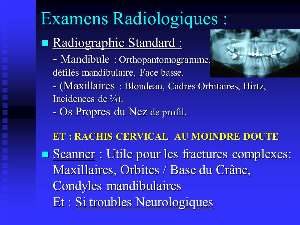 Examens Radiologiques :