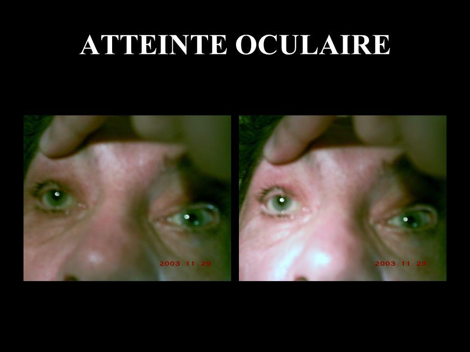 ATTEINTE OCULAIRE