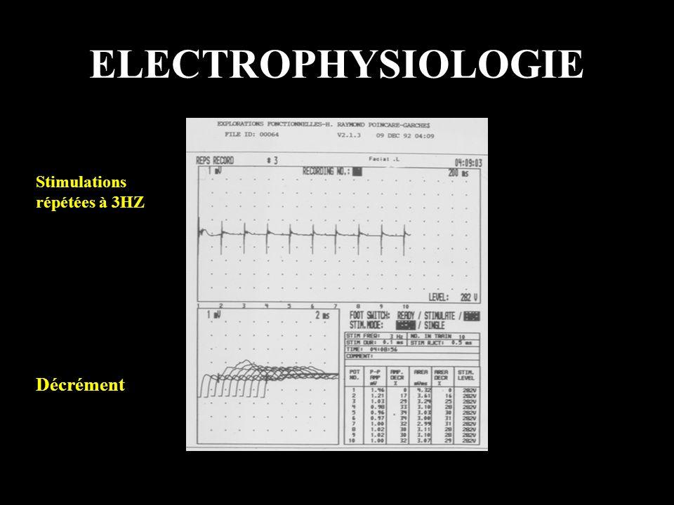 ELECTROPHYSIOLOGIE Stimulations répétées à 3HZ Décrément