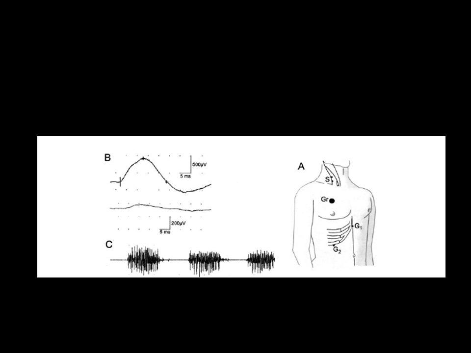DIAPHRAGM ELECTROPHYSIOLOGY
