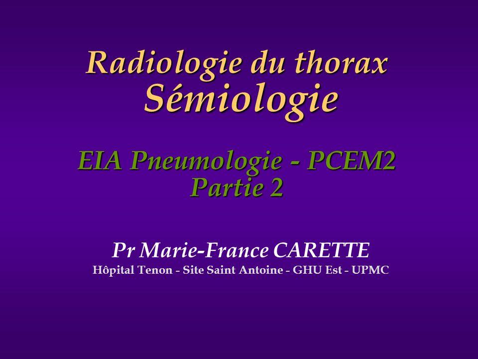 Radiologie du thorax Sémiologie EIA Pneumologie - PCEM2 Partie 2