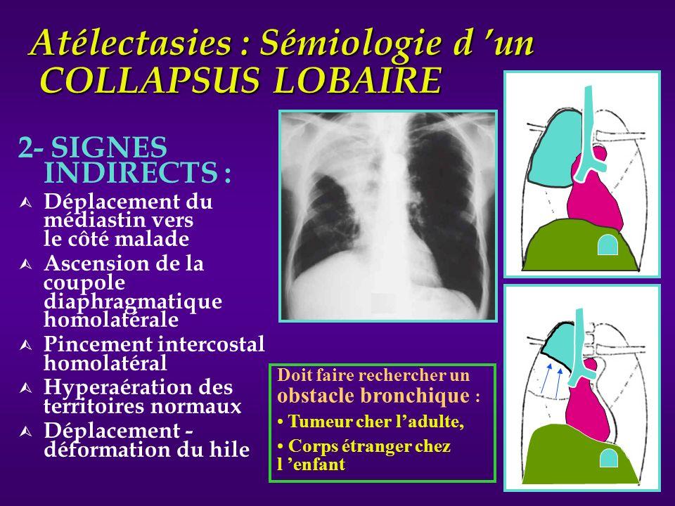 Atélectasies : Sémiologie d 'un COLLAPSUS LOBAIRE