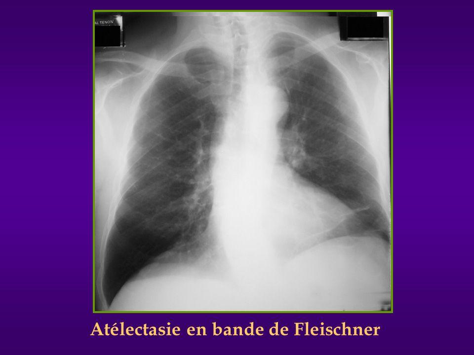 Atélectasie en bande de Fleischner