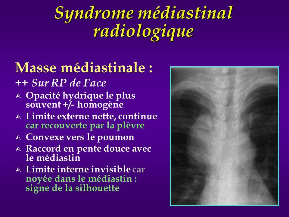 Syndrome médiastinal radiologique