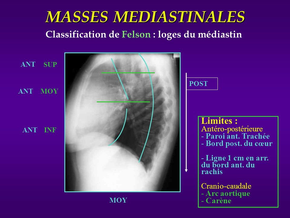 Classification de Felson : loges du médiastin