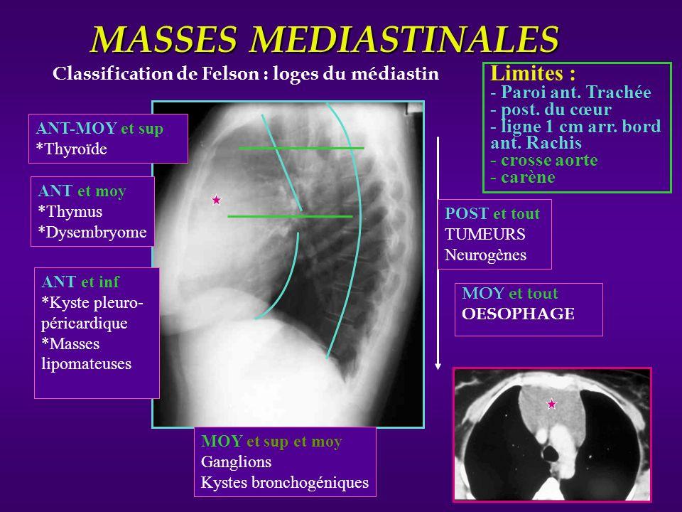 MASSES MEDIASTINALES Limites :