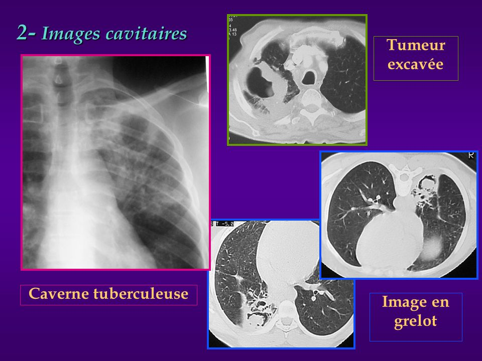 2- Images cavitaires Tumeur excavée Caverne tuberculeuse Image en