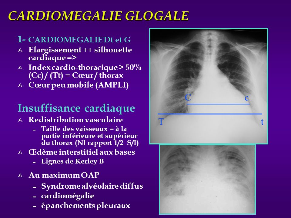 CARDIOMEGALIE GLOGALE