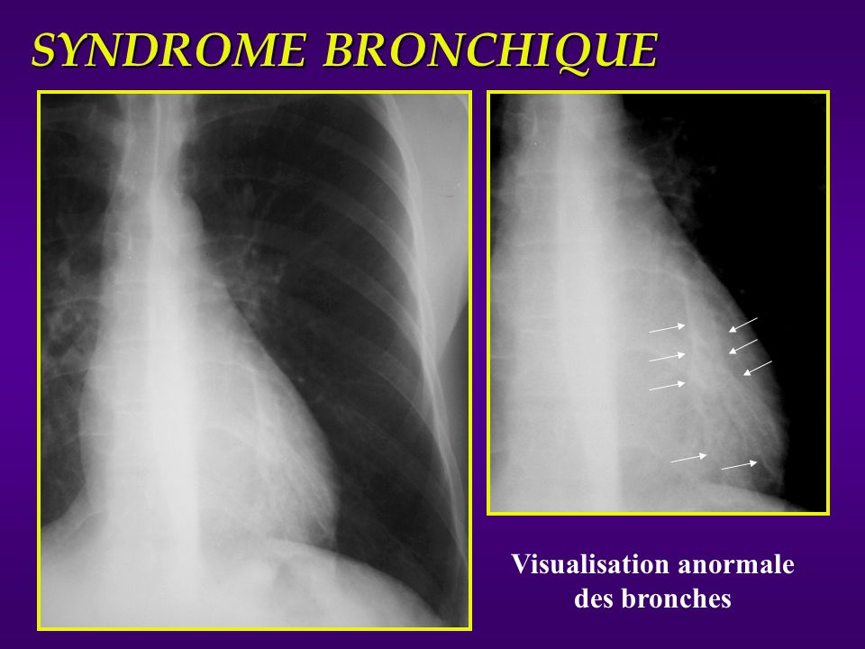 Visualisation anormale des bronches