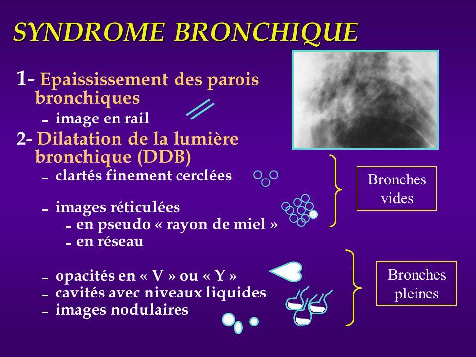 SYNDROME BRONCHIQUE 1- Epaississement des parois bronchiques