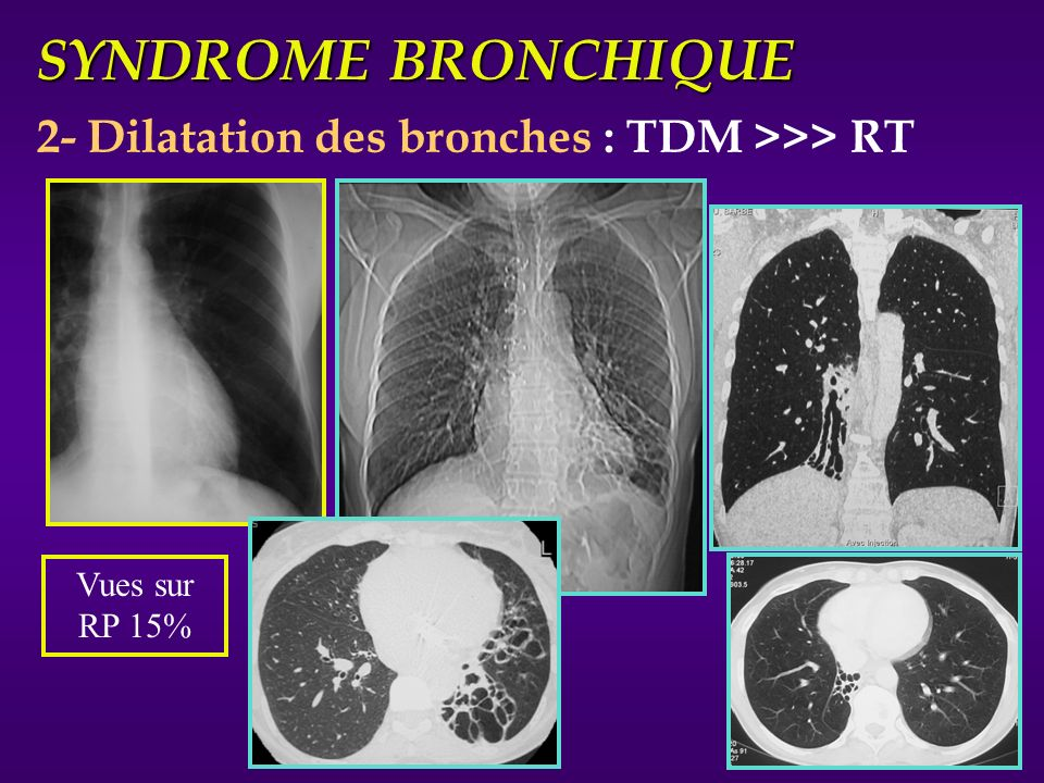 SYNDROME BRONCHIQUE 2- Dilatation des bronches : TDM >>> RT