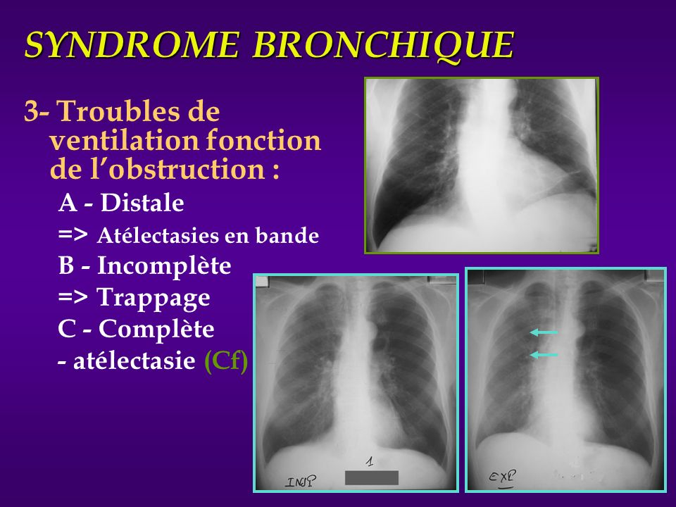 SYNDROME BRONCHIQUE 3- Troubles de ventilation fonction de l'obstruction : A - Distale. => Atélectasies en bande.