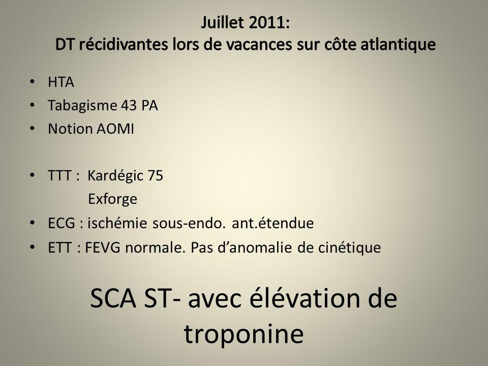 SCA ST- avec élévation de troponine