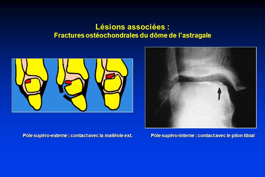 Lésions associées : Fractures ostéochondrales du dôme de l'astragale