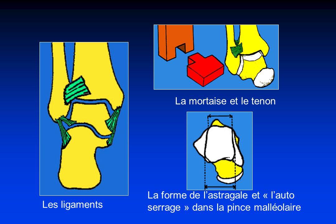 La mortaise et le tenon La forme de l'astragale et « l'auto serrage » dans la pince malléolaire.