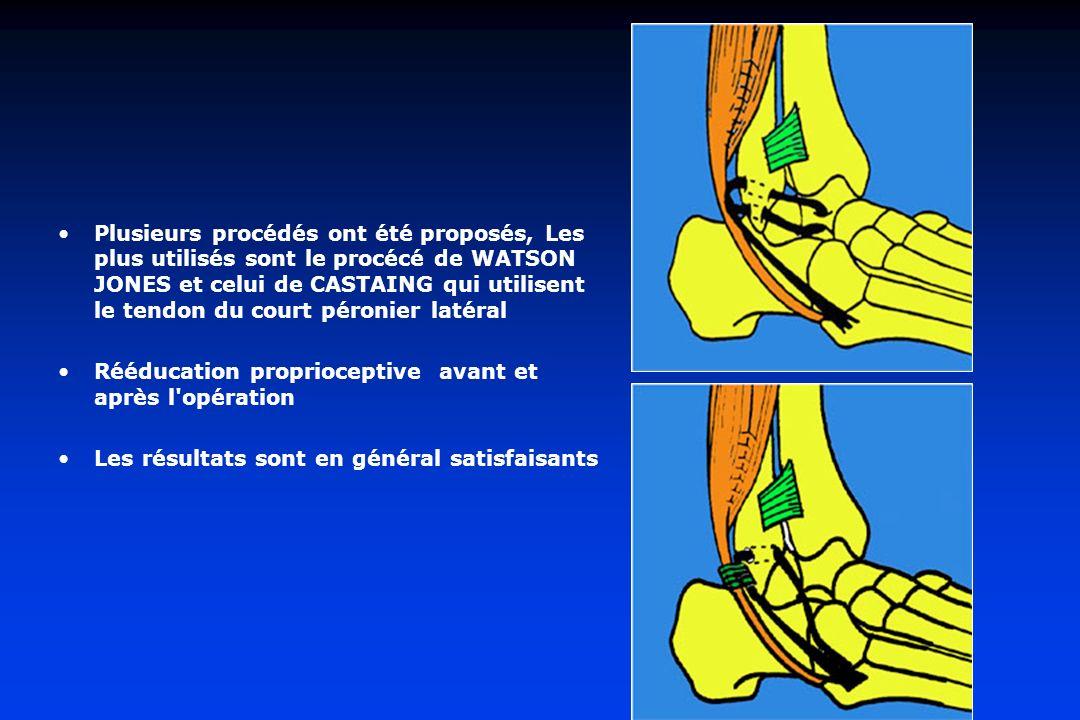Plusieurs procédés ont été proposés, Les plus utilisés sont le procécé de WATSON JONES et celui de CASTAING qui utilisent le tendon du court péronier latéral