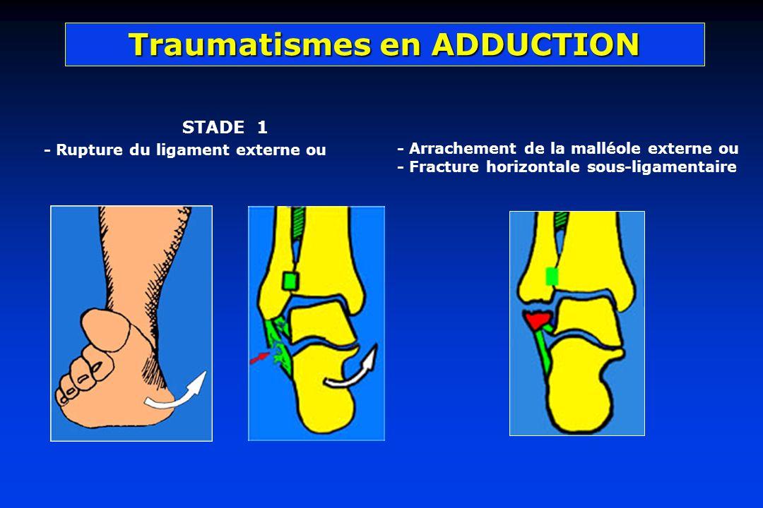 STADE 1 - Rupture du ligament externe ou
