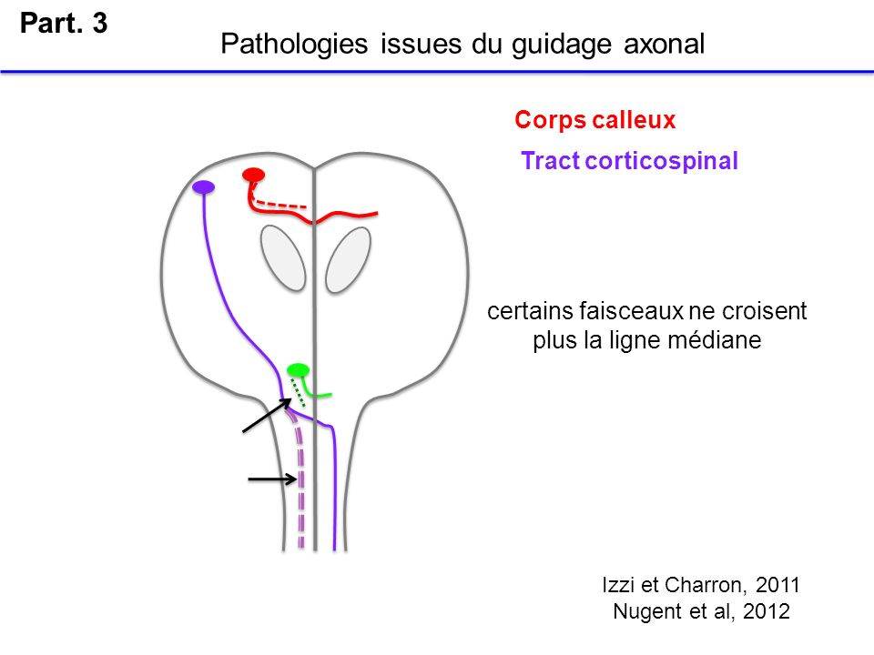 Pathologies issues du guidage axonal