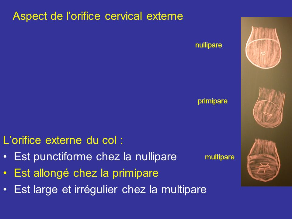 Aspect de l'orifice cervical externe