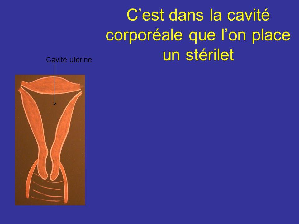 C'est dans la cavité corporéale que l'on place un stérilet