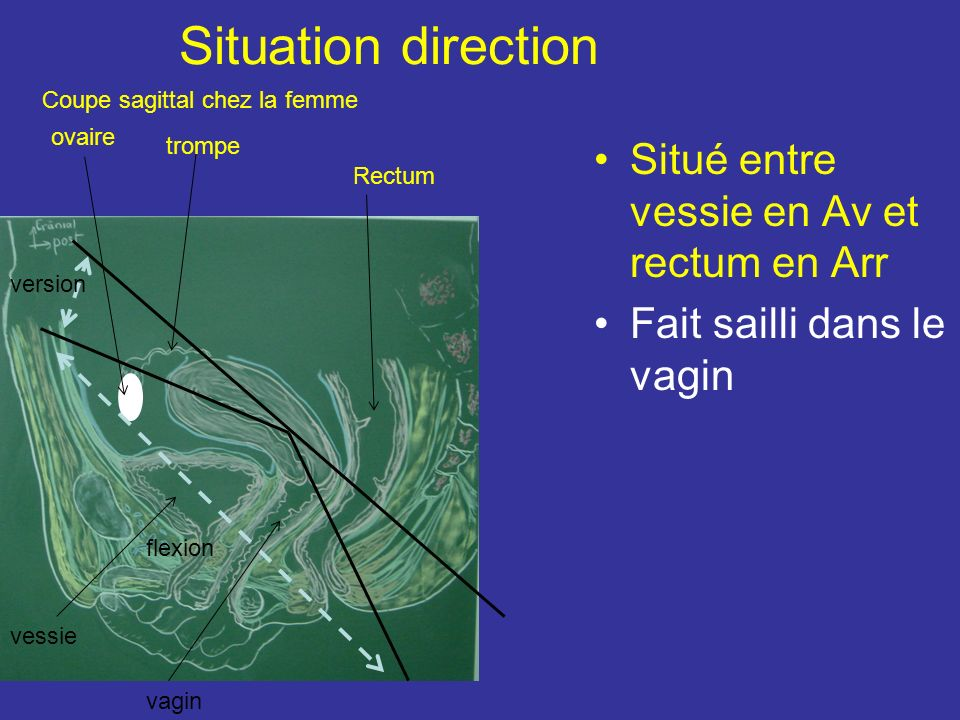 Situation direction Situé entre vessie en Av et rectum en Arr
