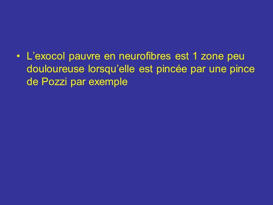 L'exocol pauvre en neurofibres est 1 zone peu douloureuse lorsqu'elle est pincée par une pince de Pozzi par exemple