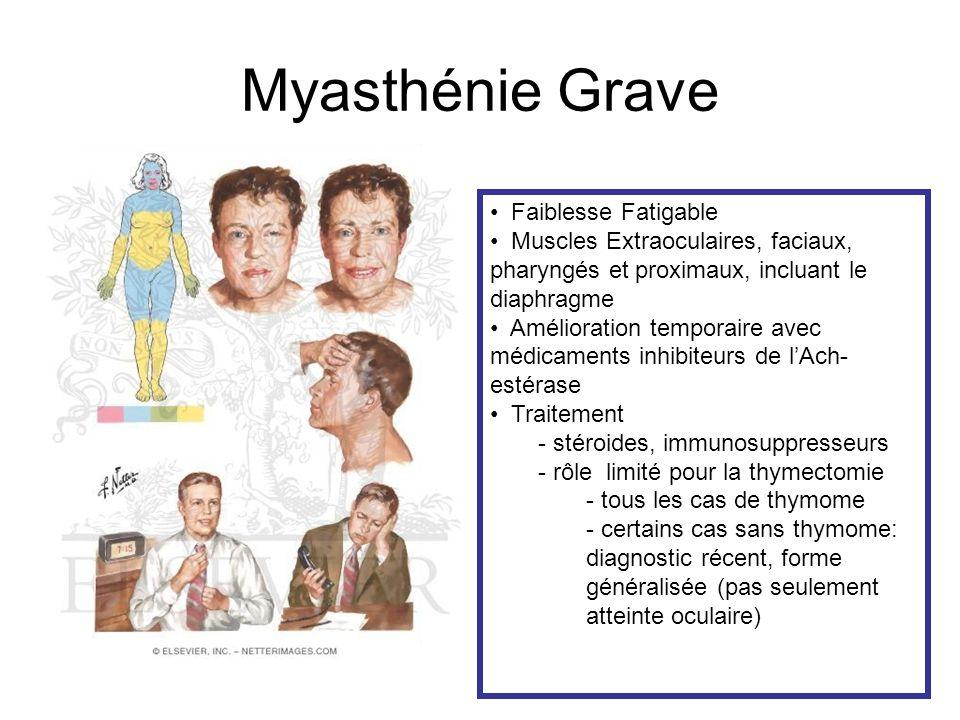 Myasthénie Grave Faiblesse Fatigable
