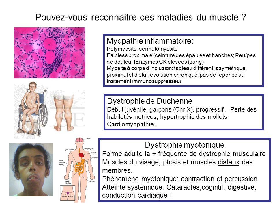 Pouvez-vous reconnaitre ces maladies du muscle