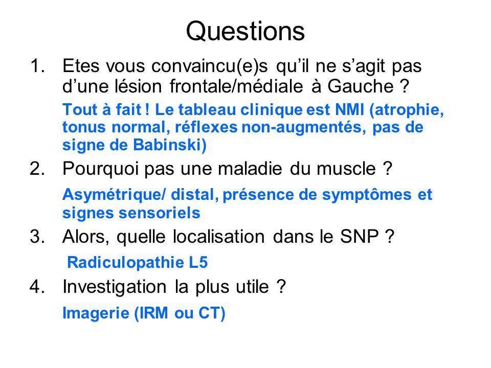 Questions Etes vous convaincu(e)s qu'il ne s'agit pas d'une lésion frontale/médiale à Gauche