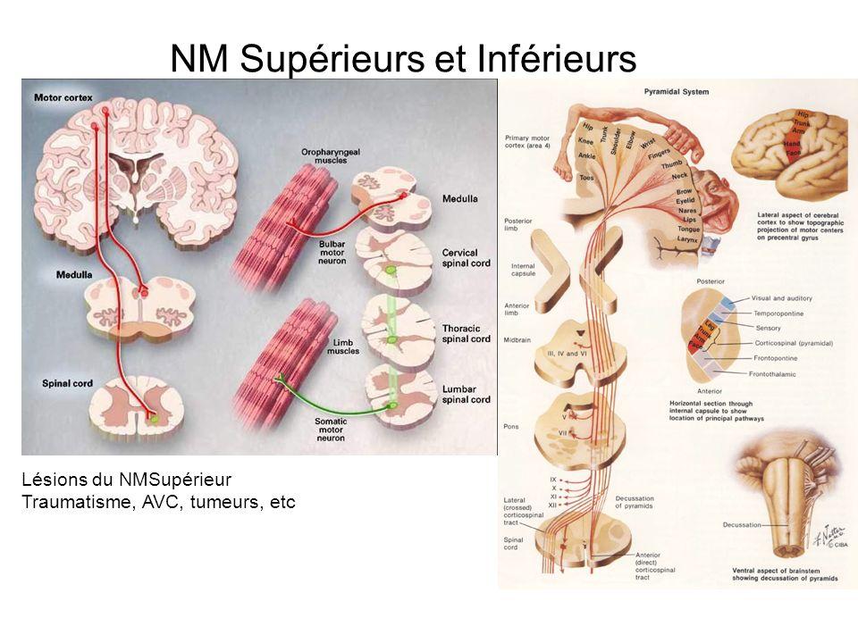 NM Supérieurs et Inférieurs