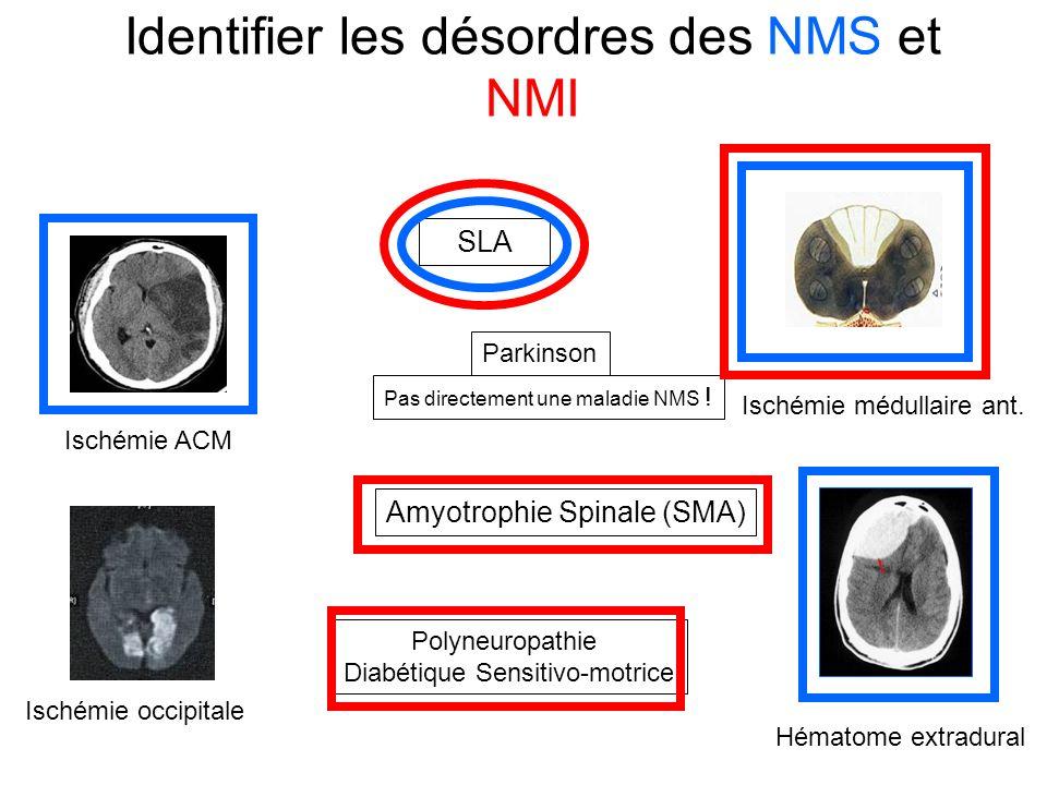 Identifier les désordres des NMS et NMI