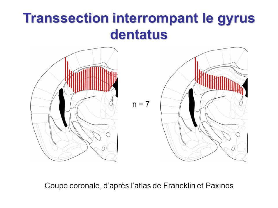 Transsection interrompant le gyrus dentatus