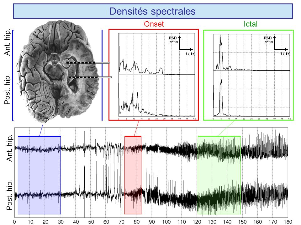 Densités spectrales Ant. hip. Post. hip. Interictal Onset Ictal