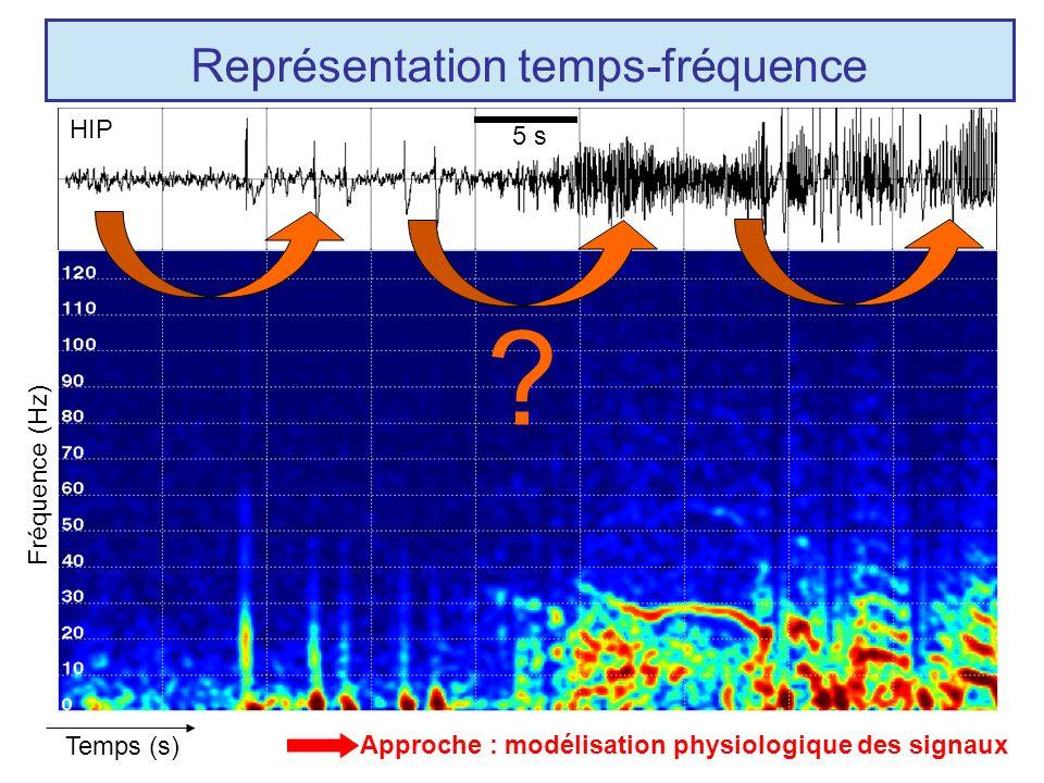 Représentation temps-fréquence
