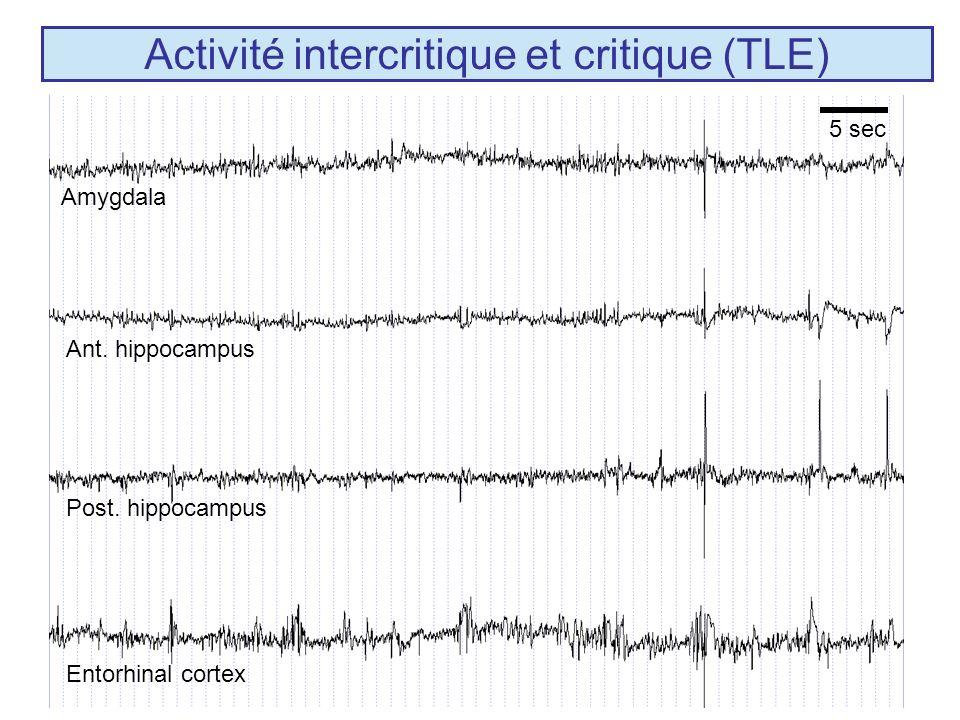 Activité intercritique et critique (TLE)