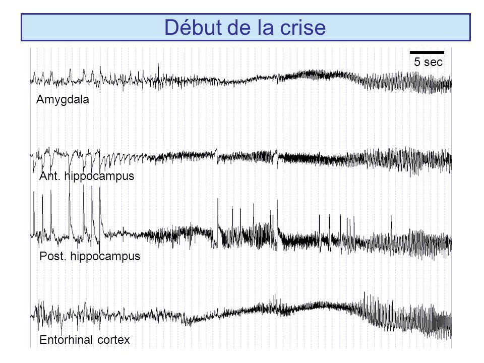 Début de la crise 5 sec Amygdala Ant. hippocampus Post. hippocampus