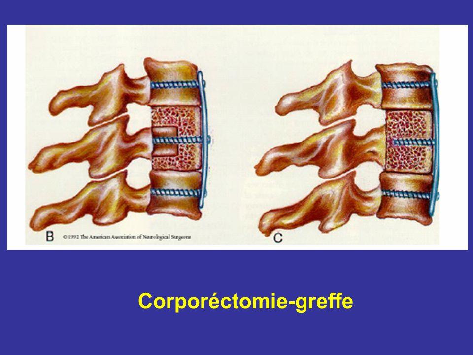 Corporéctomie-greffe