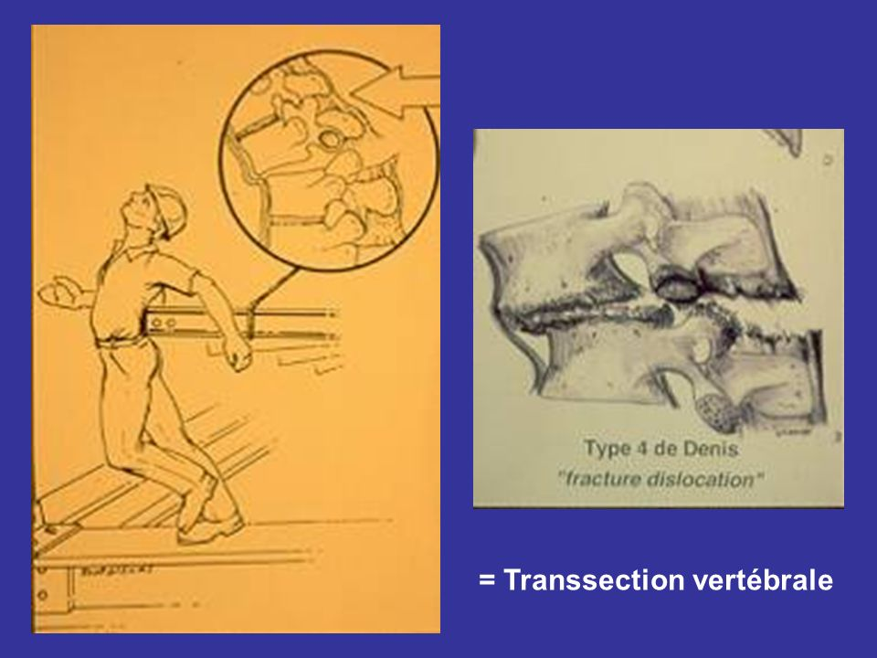 = Transsection vertébrale