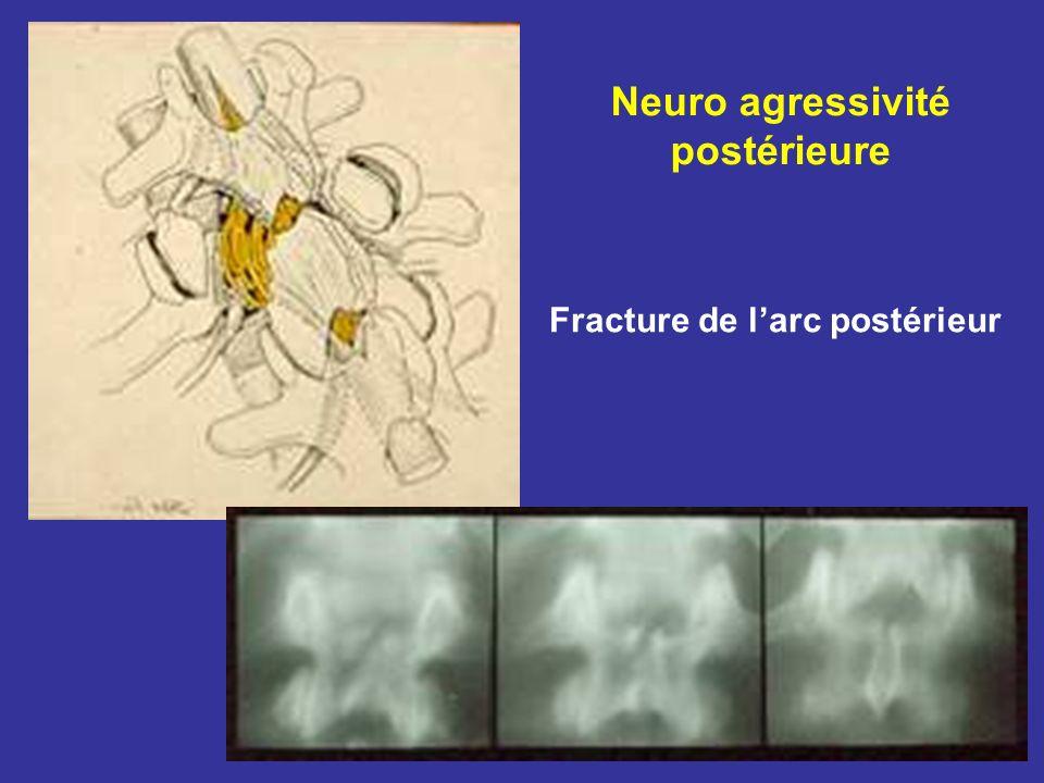 Neuro agressivité postérieure