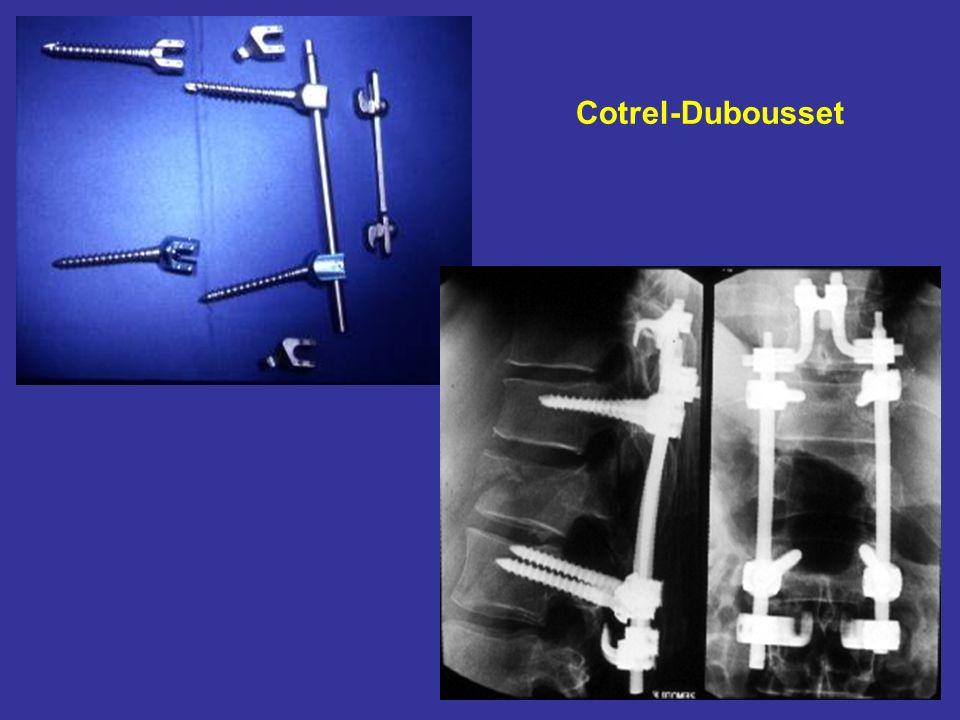 Cotrel-Dubousset