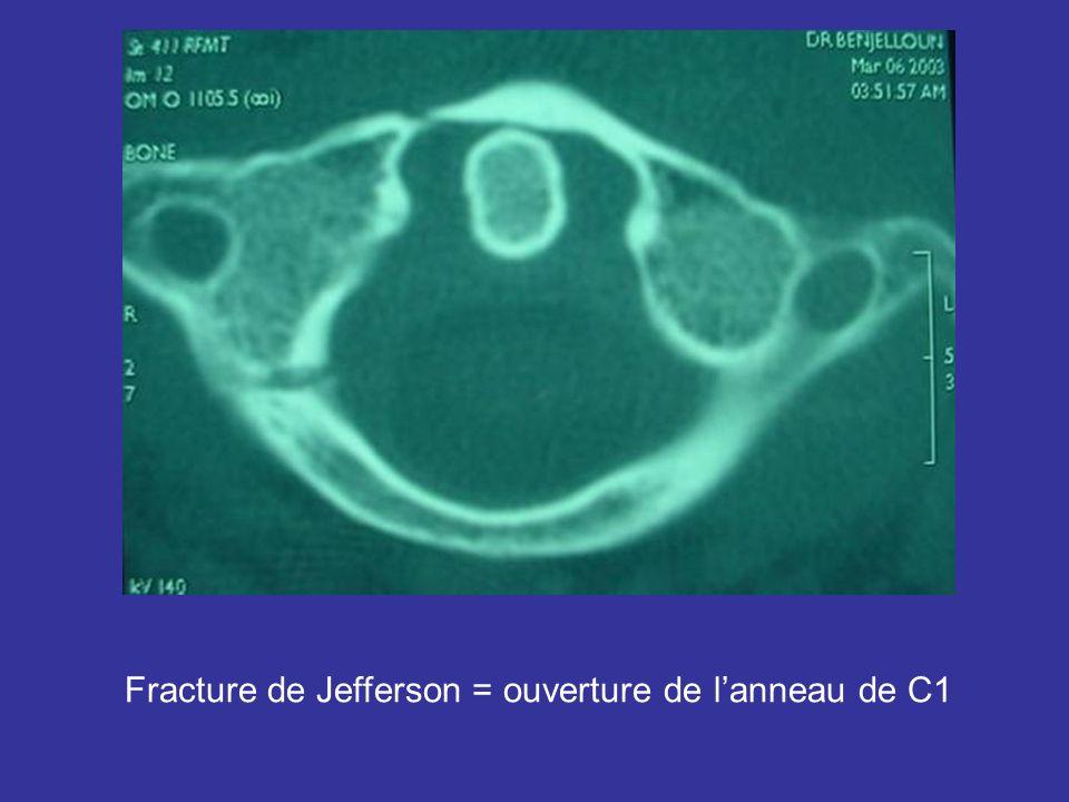 Fracture de Jefferson = ouverture de l'anneau de C1