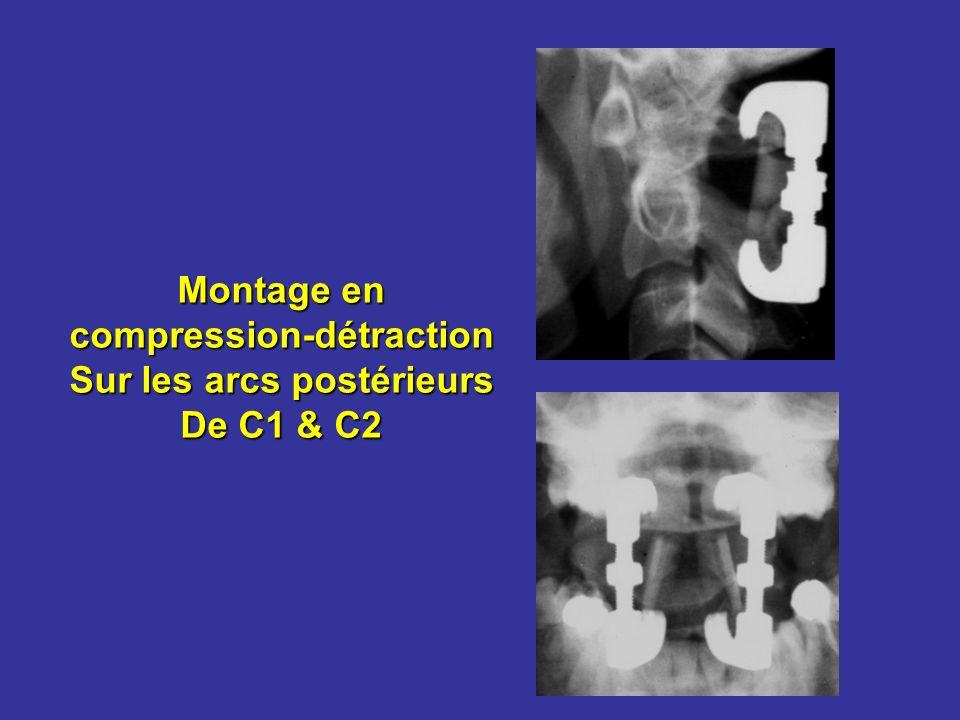 compression-détraction Sur les arcs postérieurs