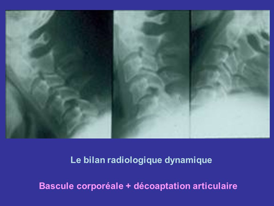 Le bilan radiologique dynamique