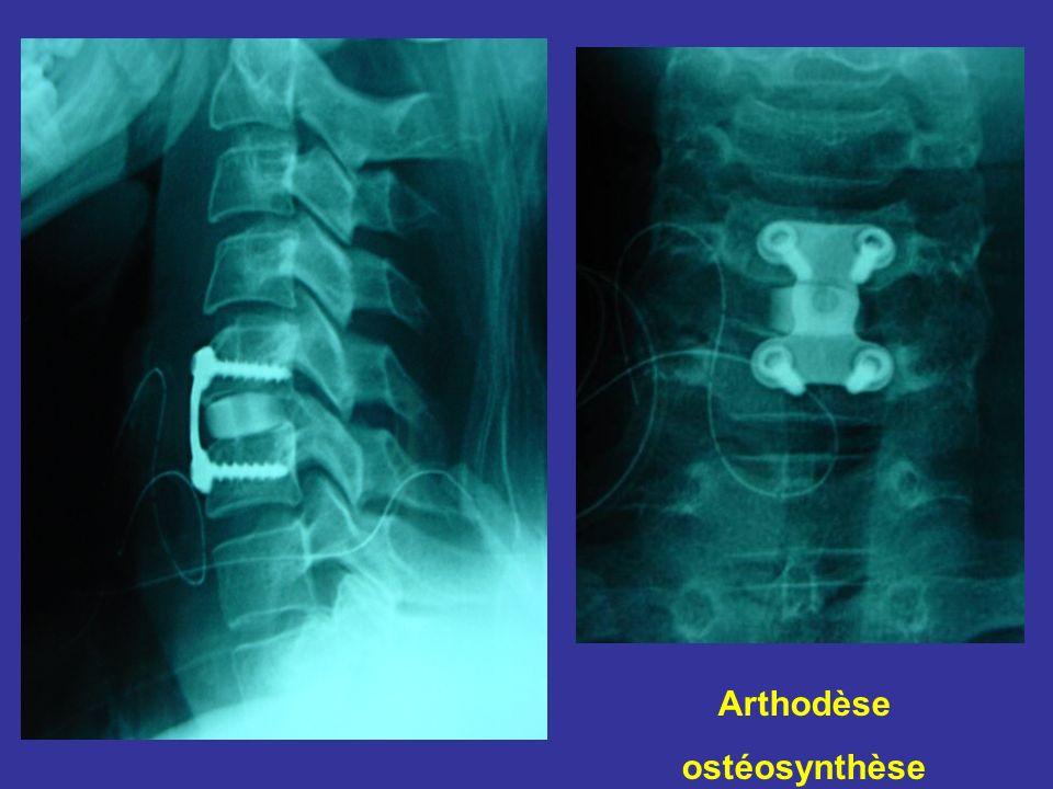Arthodèse ostéosynthèse