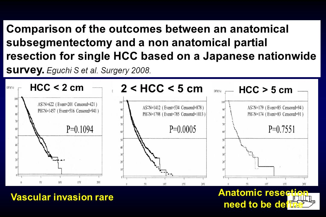 Anatomic resection need to be define